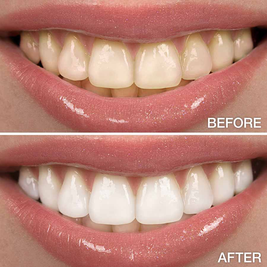 whitened teeth tips