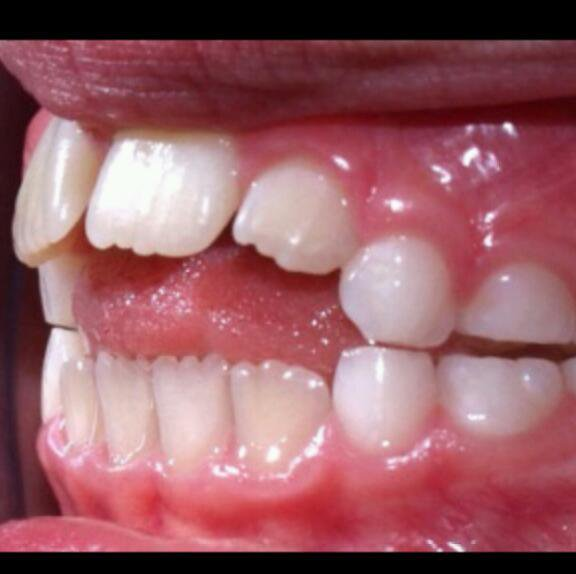 pacifier misaligned teeth