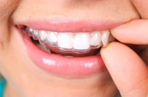 woman holding invisalign clear braces to teeth