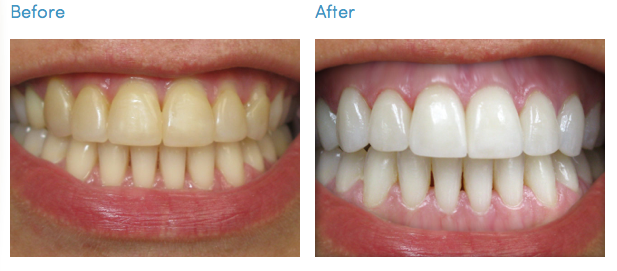 Professional vs At Home Teeth Whitening