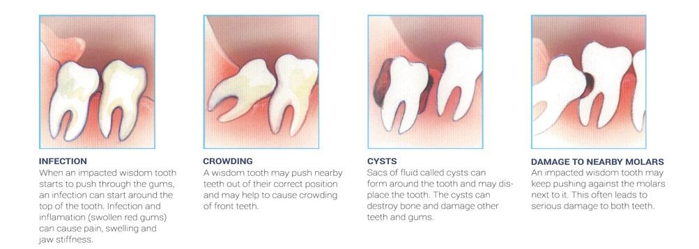 wisdom teeth growth