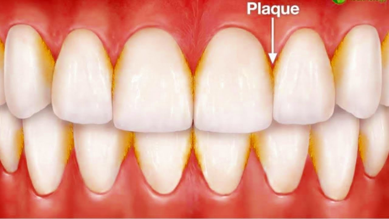 The Best Way To Remove Plaque From Teeth