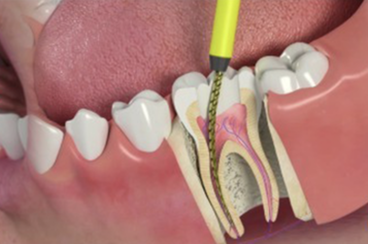 Tooth Abscess: Treatment, Symptoms, & Causes | Monroe Family Dentist