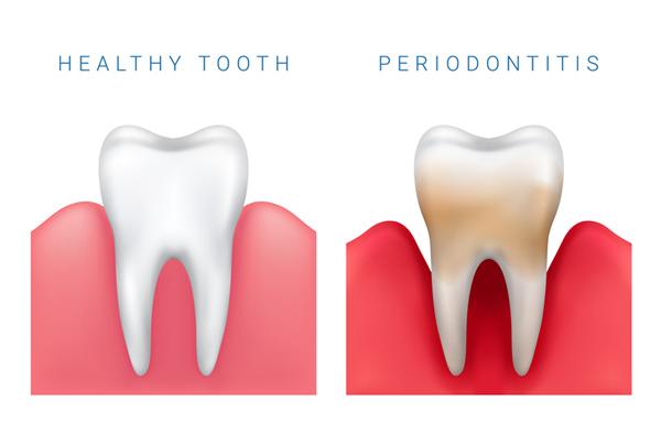 treating dental disease in Monroe NC