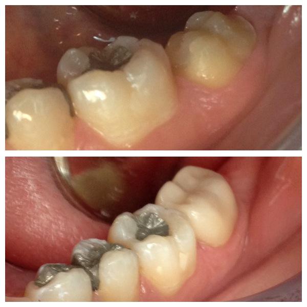monroe dental crown services