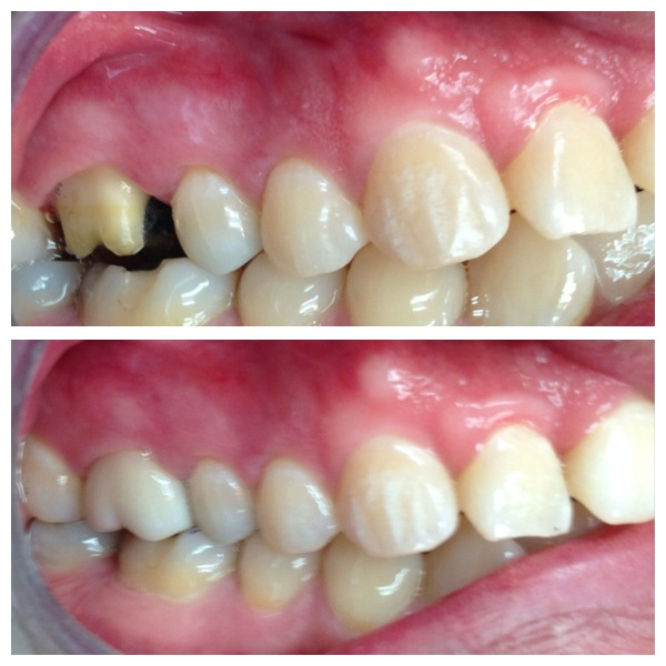 tooth crown before and after