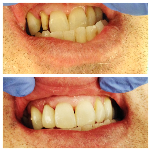front tooth repair