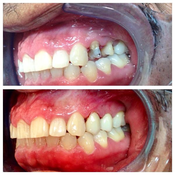 one back tooth crown repair