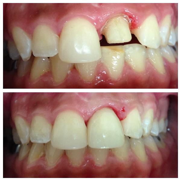 tooth crown repair results