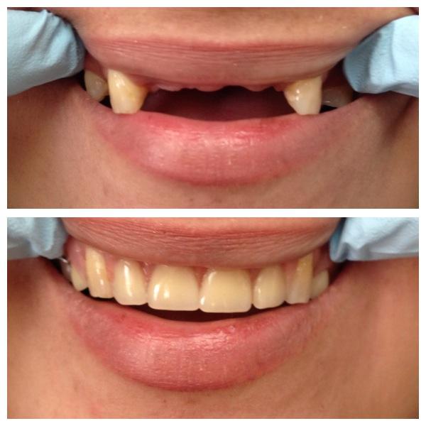 top teeth partial dentures