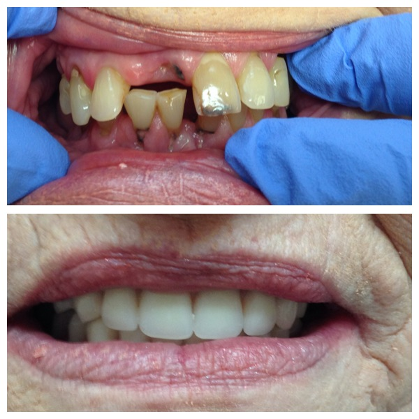 top and bottom full set of dentures