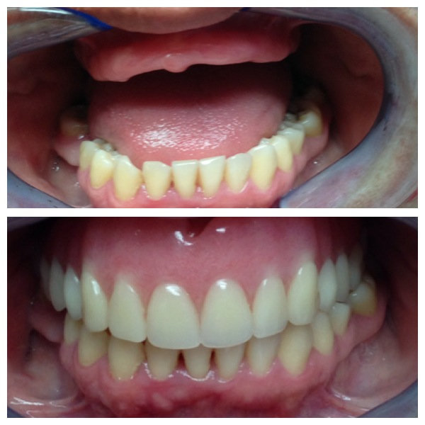 top row partial dentures
