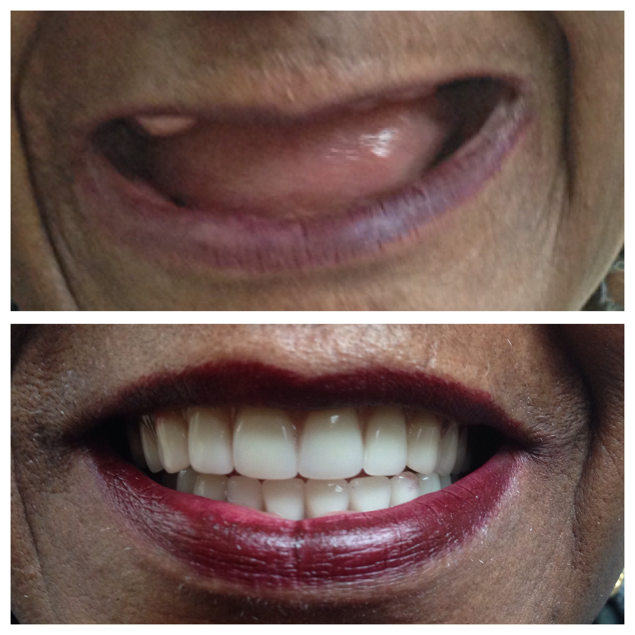 full set of dentures before and after