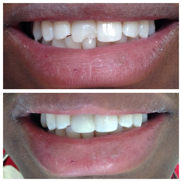 broken tooth repair before and after
