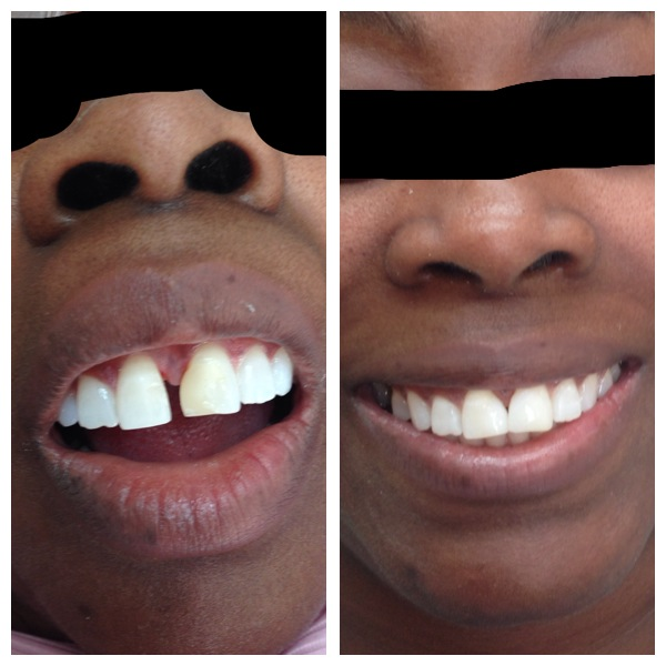 teeth space closure before and after