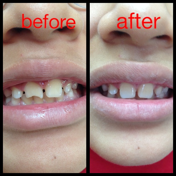 before and after teeth fillings