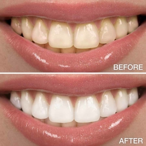 whitened teeth tips