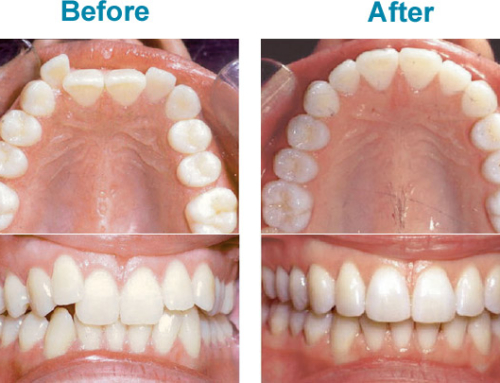 Unsure if Invisalign Is right For You?