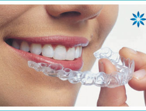 Ways To Help You Prepare For Your Invisalign Treatment