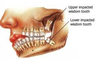 wisdom teeth extraction