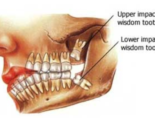 Are Your Wisdom Teeth Impacted?