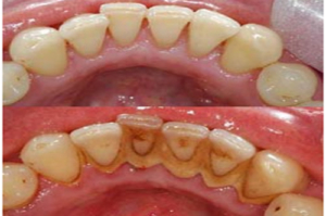 before after teeth cleaning