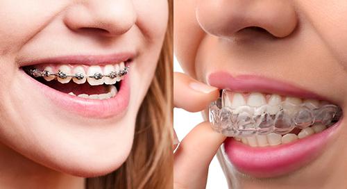 invisalign clear aligners vs braces