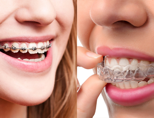 What's The Difference Between Invisalign & Braces?