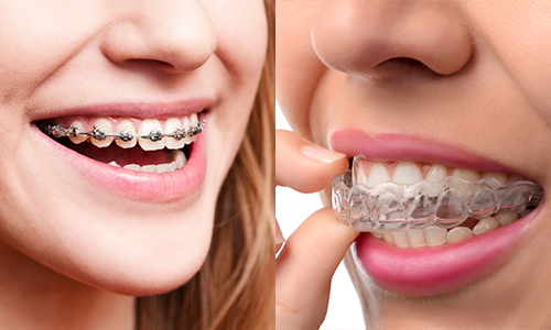 Dr. Mjahed Shares Benefits of Invisalign Clear Braces