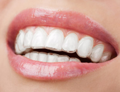 Dr. Mjahed Shares Benefits of Invisalign Clear Brace