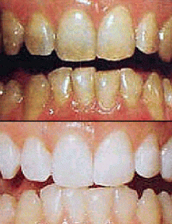 Smoking Teeth Before And After Whitening Monroe Family Dentistry