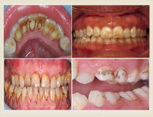 Learn More About Teeth Discoloration