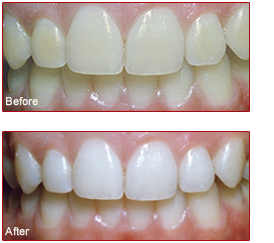 Professional Teeth Whitening by Our Cosmetic Dentist