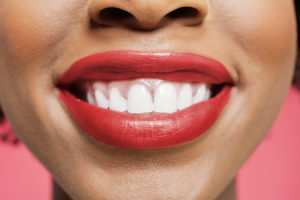 Benefits of Straightening Your Teeth