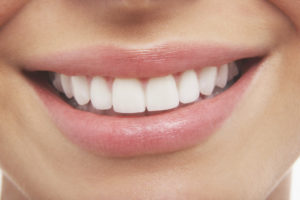 How Mouth Guards Can Keep Your Teeth Safer
