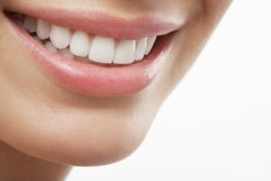 Things to Never Do with Dental Veneers