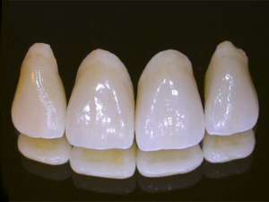 porcelain dental crown