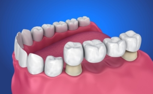 Dental Bridges at Monroe Family Dentistry