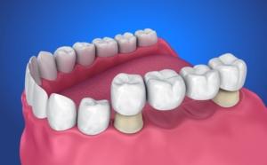 Dental Bridges at Monroe Family Dentistry