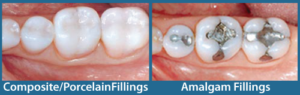 tooth filling options