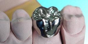 full metal dental crown