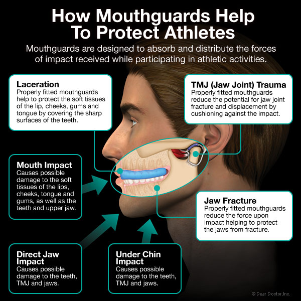 protecting athletes with mouthguards