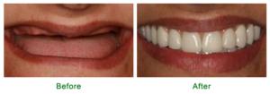 missing teeth complete set of dentures