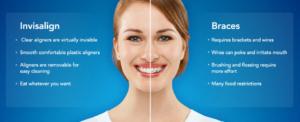 invisalign versus braces