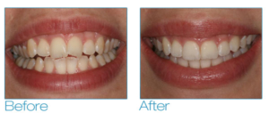 complete dentures before and afte