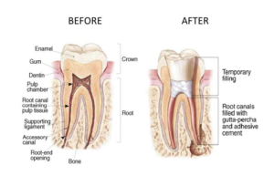 rct-before-after