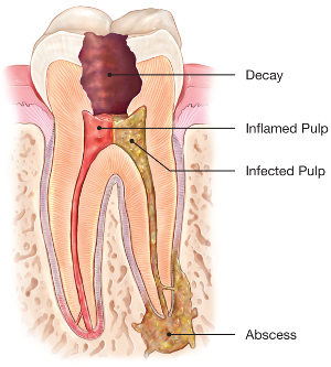 endodontics root canal treatment area