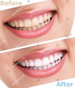 bleaching-teeth-treatment-close-up