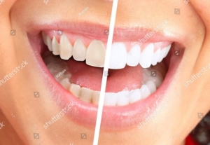 stock-photo-happy-smiling-woman-dental-health-background-96720667