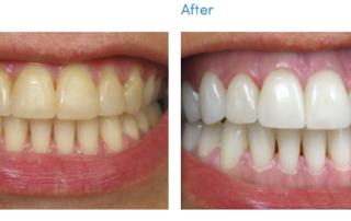 teeth whitening monroe nc
